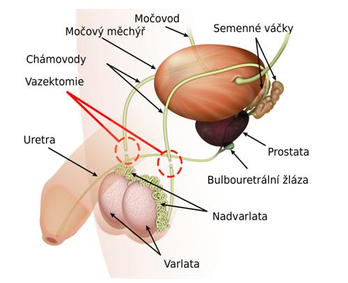 vazektomie